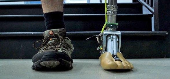 Mikroişlemcili Protezler