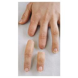 Parmak ve Parsiyel El Protezleri